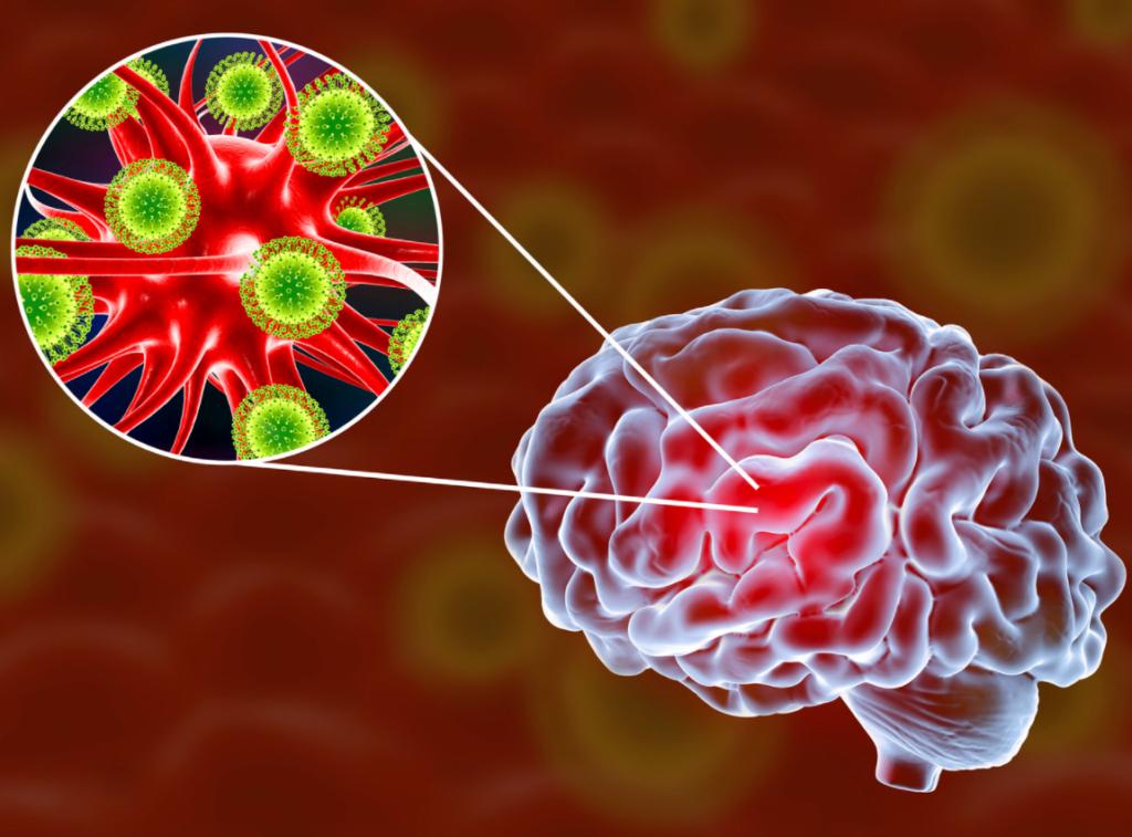 imagem de um cérebro, com um zoom para mostrar o que ocorre quando há meningite